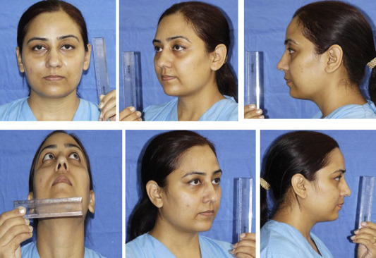 The Indian nose: An anthropometric analysis - ScienceDirect