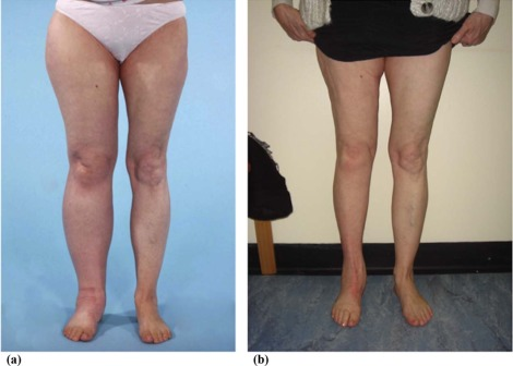 Liposuction as an effective treatment for lower extremity