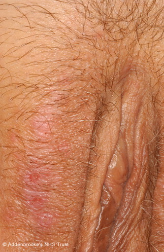 Folliculitis in folds of the vulva