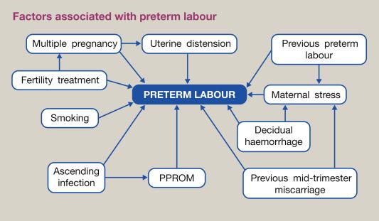 Management of preterm labour - ScienceDirect