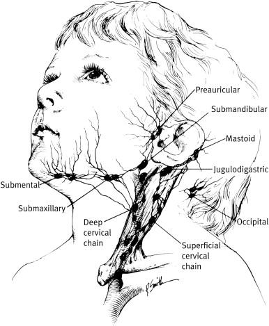 Management Of Enlarged Cervical Lymph Nodes