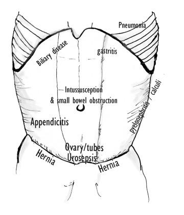 Evaluation Of The Acute Abdomen