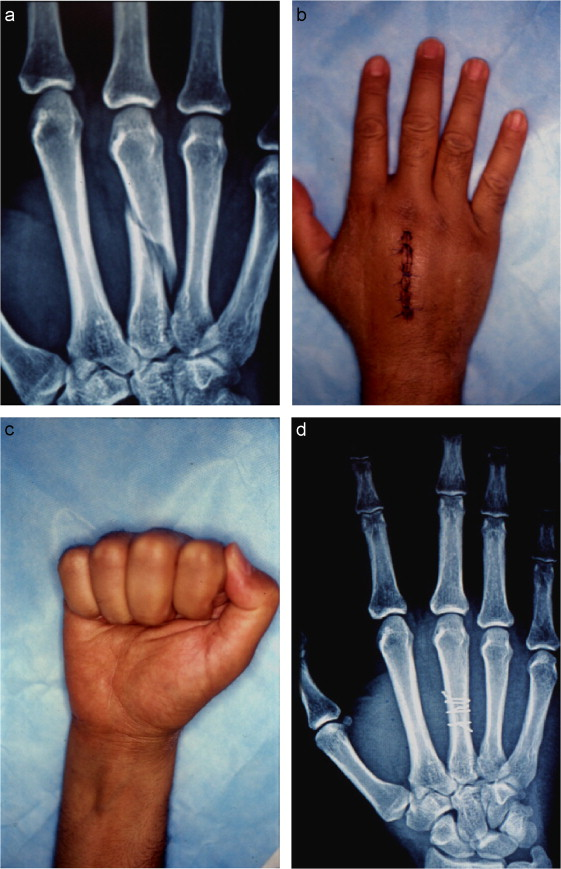 Long oblique/spiral mid-shaft metacarpal fractures of the fingers ...