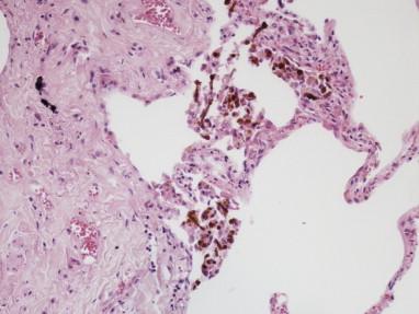 The pathology of asbestosis - ScienceDirect