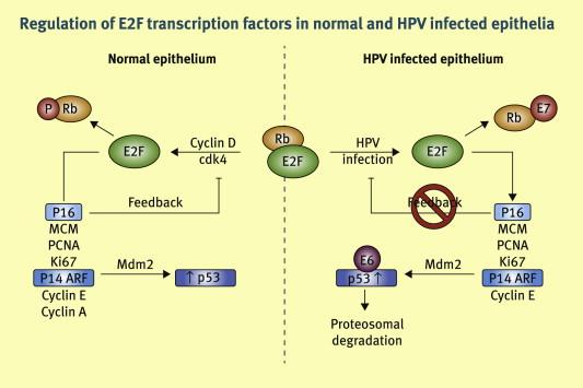 hpv p16 vírus papillomavírussal kezelik