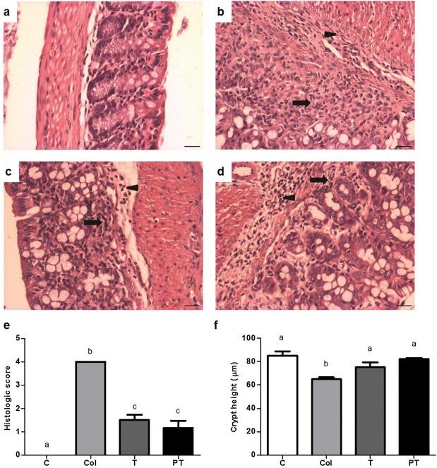 Arginine supplementation reduces colonic injury