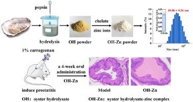 nonbacterial prostatitis stress)