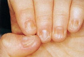 diabetes de uñas distróficas en niños