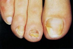 máculas negras en infección de la piel séptica
