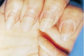 Volviéndose negras manos pies
