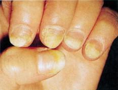 leukonychia striata diagnóstico de diabetes