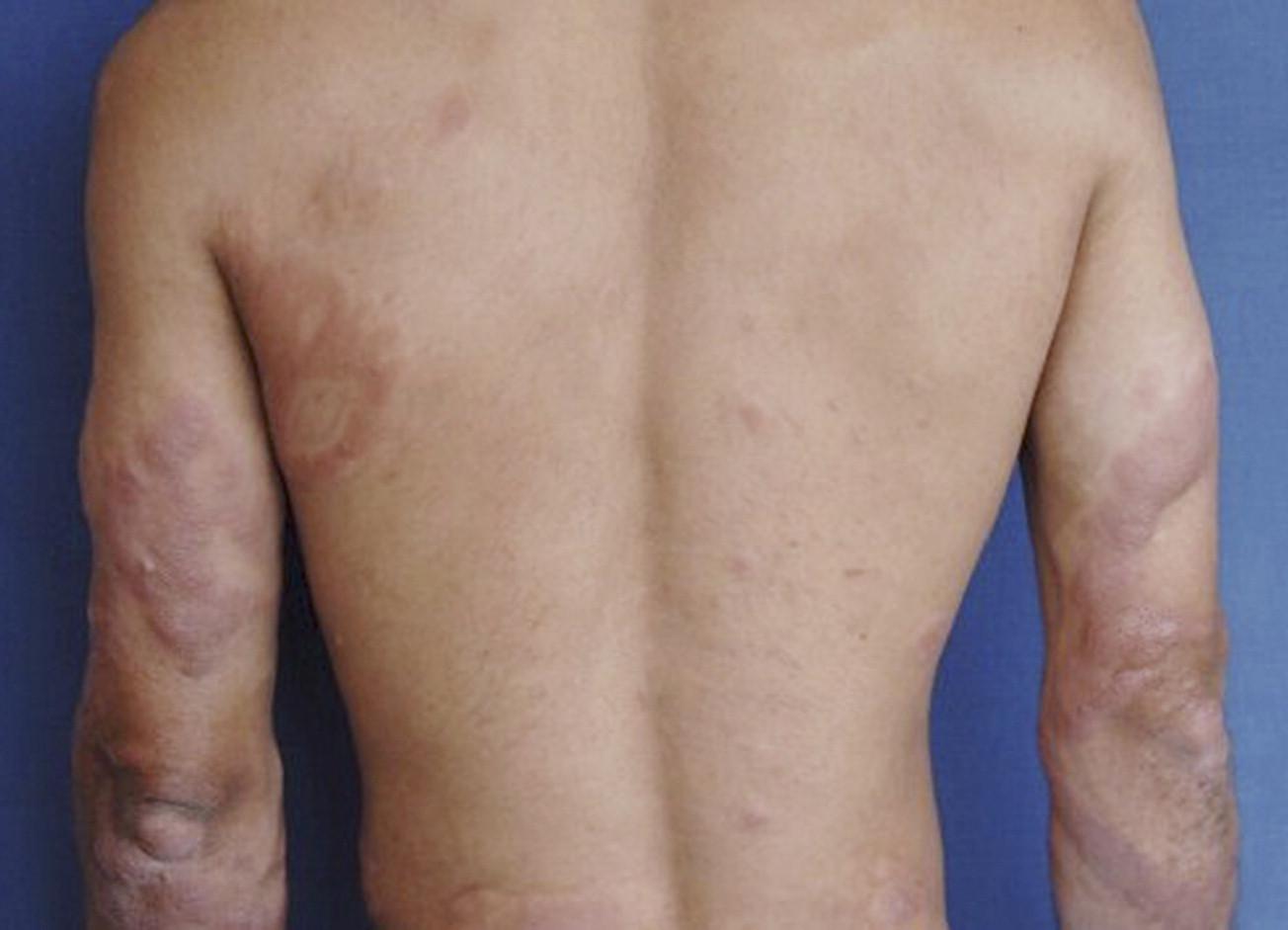 Lepra Lepromatosa Pdf