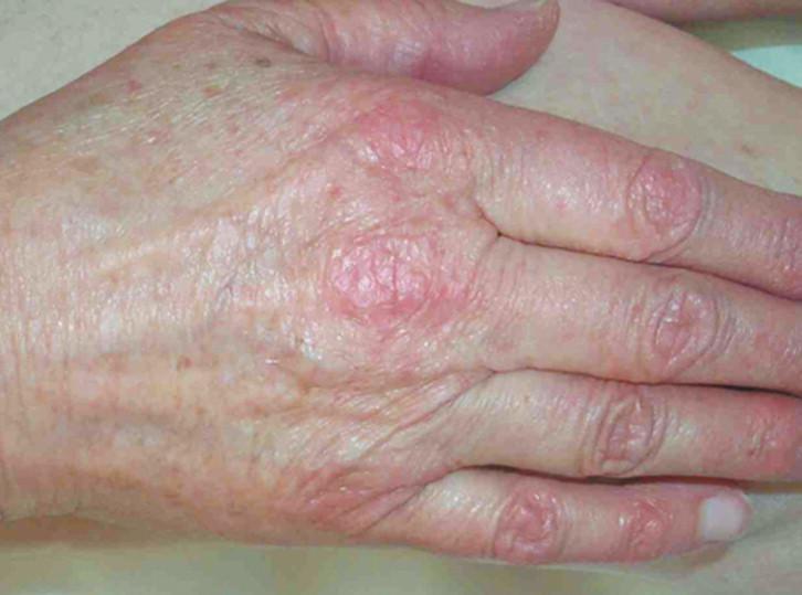el cáncer de próstata puede causar dermatomiositis