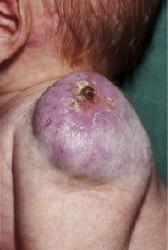 Síndrome de Buschke Ollendorff más síntomas de condición de diabetes