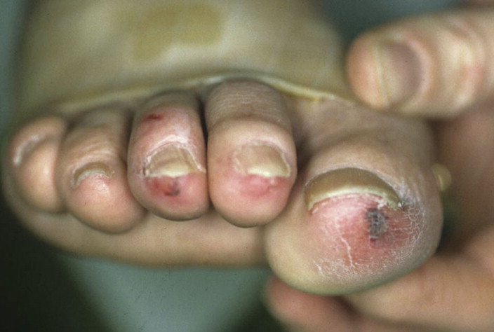 pie fisiopatológico gangrenoso de la diabetes
