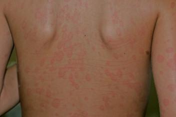 enfermedad de la piel kawasaki