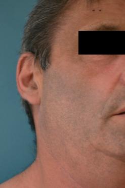 tratamientos faciales acompañantes independientes