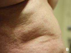 erupciones de diabetes en la espalda