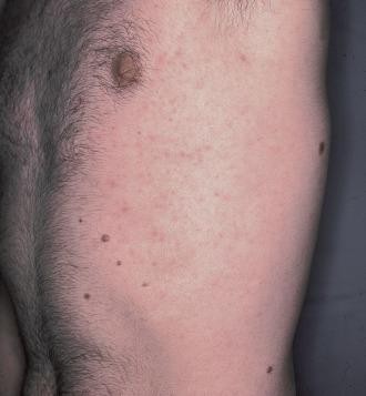 discutir la infección bacteriana de la piel