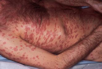 primeras etapas de la infección de la piel mrsa