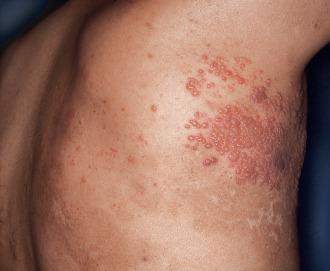 las infecciones en la piel por cándida causan picazón y erupciones cutáneas