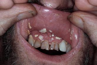 condiloma debajo de la lengua