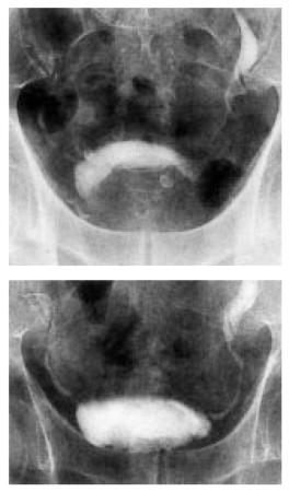 próstata no homogénea que se proyecta hacia la vejiga
