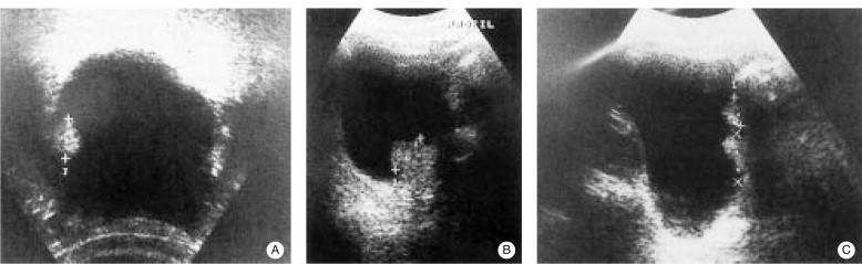 Exploración radiológica de la vejiga y de la uretra - ScienceDirect