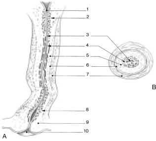 dolor hisopo de próstata quiste uretral