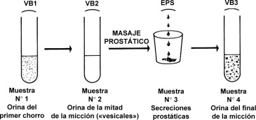 diferencia entre uretritis y prostatitis