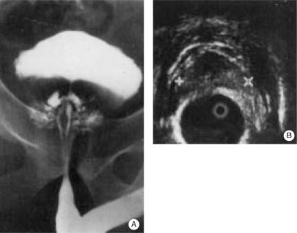calcificaciones de la próstata calidad líquida de la