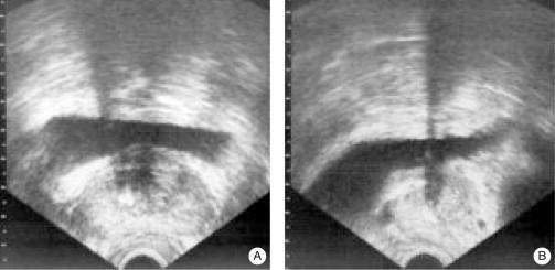 cuerpos amiloides próstata