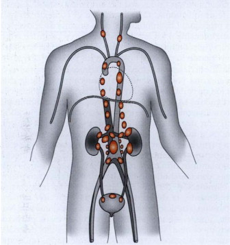 Glandes surrenales et etapa de hipertensión