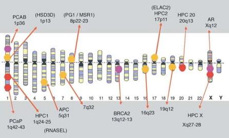 adenocarcinoma de próstata grado 6 seg puntaje de gleason 3 3 5 cuadro de participación 2020