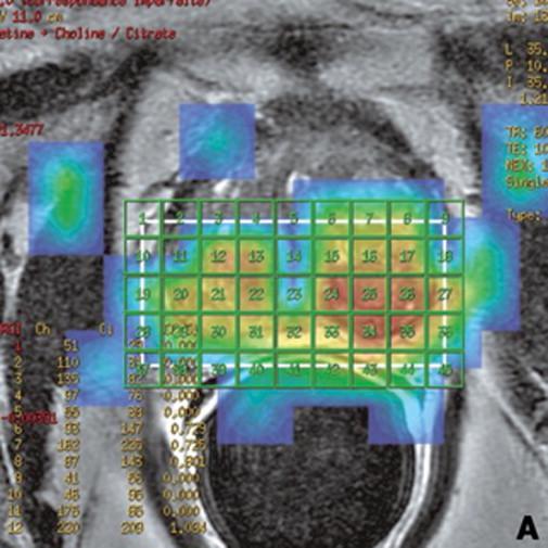 próstata aumenta de tamaño con falta de homogeneidad