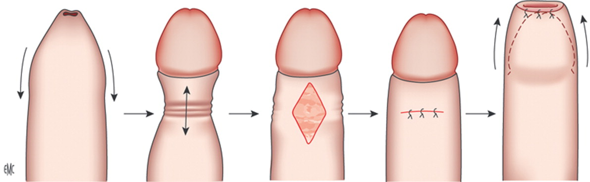 hoja prepucial de erección e irritación