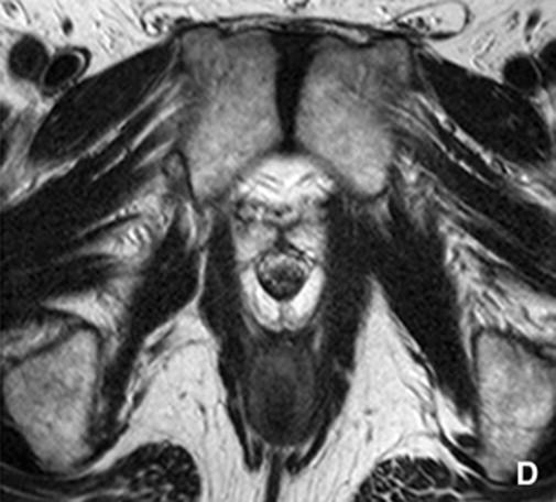 Pruebas de imagen del cáncer de próstata localizado - ScienceDirect