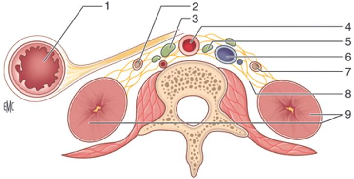 Lesiones quirúrgicas del uréter - ScienceDirect