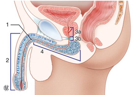 quemaduras cerca de la uretra