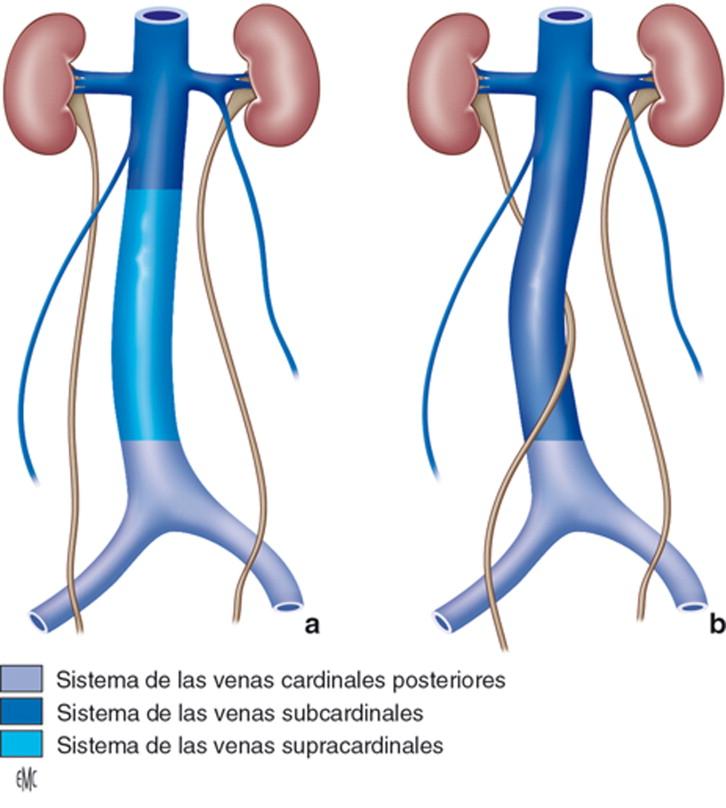 Uréter retrocavo - ScienceDirect