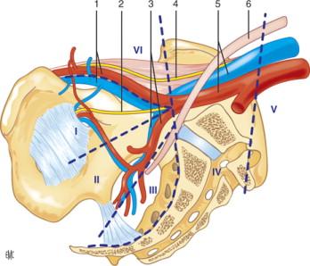 ganglios linfáticos del sitio ilíaco externo después del acceso a la próstata
