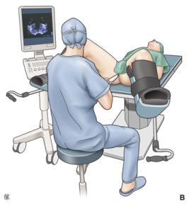 casos de sepsis causada por biopsia de próstata