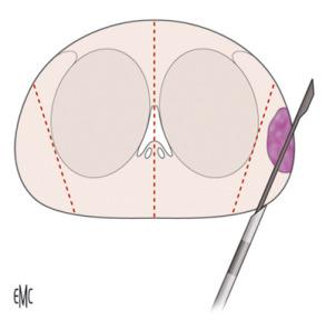 criterios para biopsia de prostata