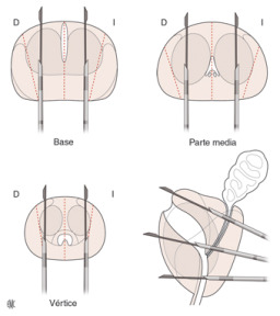imágenes del procedimiento de biopsia de próstata