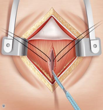 limitar la cirugía de próstata etapa