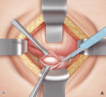 operaciones de la próstata próstata