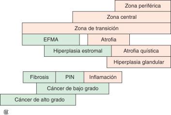 lóbulos de próstata de 4 pines de bajo grados