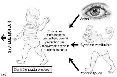 Vertiges de l'enfant - ScienceDirect