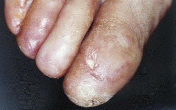 Lichen plan et dermatoses lichénoïdes - ScienceDirect