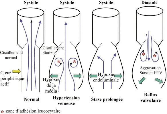 Hémorhéologie clinique. Concept, physiopathologie et ...